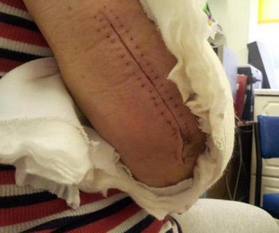 Изображение - Отек кисти после операции на локтевом суставе 1343844