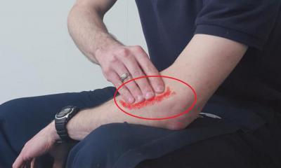 Опух и болит локтевой сустав после ушиба болит палец кровь в суставе