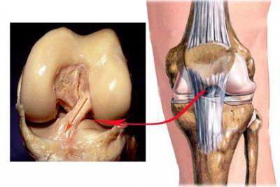 Изображение - Связки и сухожилия коленного сустава 1344537