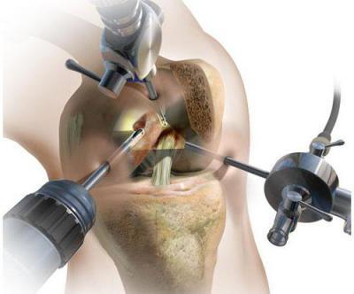 Изображение - Связки и сухожилия коленного сустава 1344542