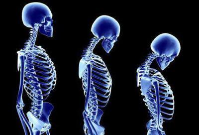 К какому врачу обращаться с диагнозом остеопороз