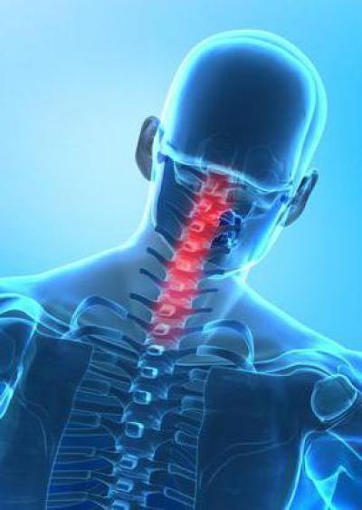 Вытяжение при переломе шейного позвонка