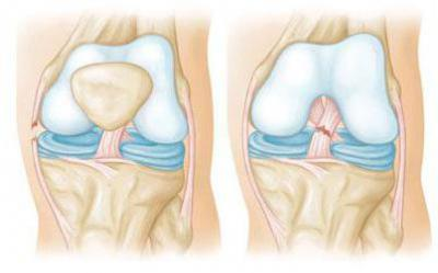 Анатомия синовиальных сумок коленного сустава