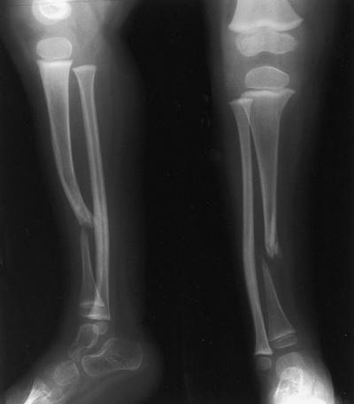 Врожденный ложный сустав ключицы операция архангельск протезирование суставов
