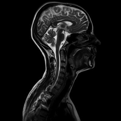 Анатомия шейного отдела позвоночника мрт