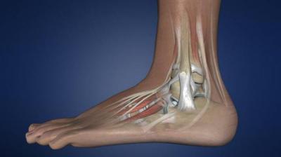 Артродез голеностопного сустава инвалидность фото протеза тзб.сустава