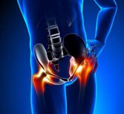 Изображение - Укрепление связок тазобедренного сустава физическими упражнениями 1480771