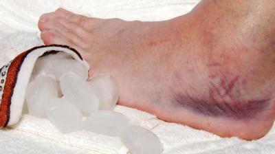 Изображение - Опухает в области голеностопного сустава 1560540