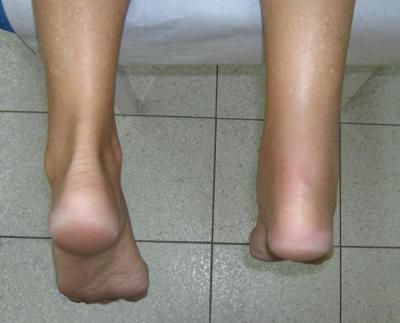 Изображение - Опухает в области голеностопного сустава 1560544