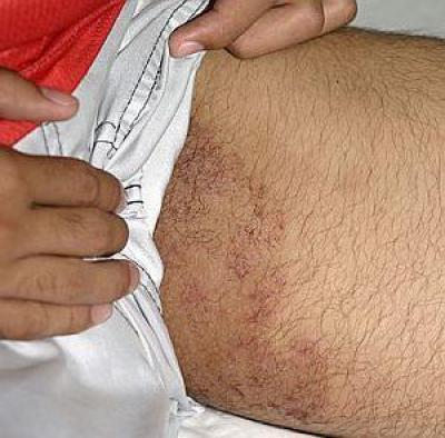 Как отбеливать кожу между ног: практические советы
