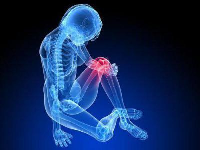Изображение - Артроз пателлофеморального сочленения коленного сустава 1737385