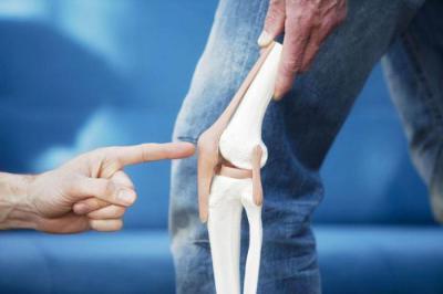 Изображение - Артроз пателлофеморального сочленения коленного сустава 1737388