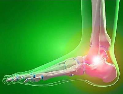 Изображение - Чем обезболить боль в суставах ног 175794