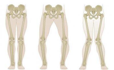 Изображение - Лечение вальгуса коленного сустава 1766587