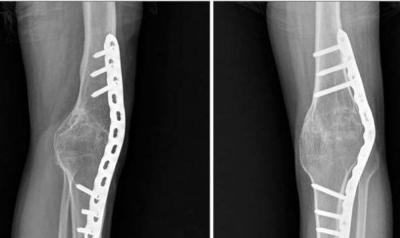 Изображение - Лечение вальгуса коленного сустава 1766591