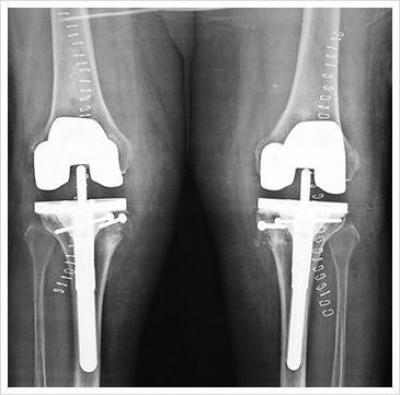 Изображение - Лечение вальгуса коленного сустава 1766598