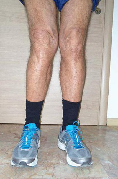 Изображение - Лечение вальгуса коленного сустава 1766638