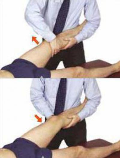 Изображение - Лечение вальгуса коленного сустава 1766655