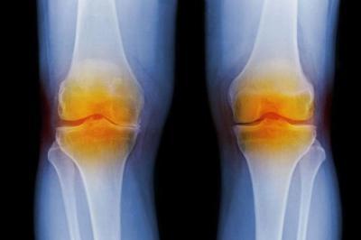 Изображение - Хондроматоз коленного сустава симптомы 1855667