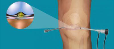 Изображение - Хондроматоз коленного сустава симптомы 1855677