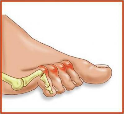 Изображение - Деформация суставов пальцев ног 1873712