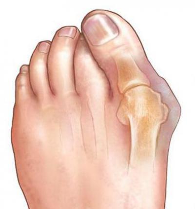 Изображение - Деформация суставов пальцев ног 1873746