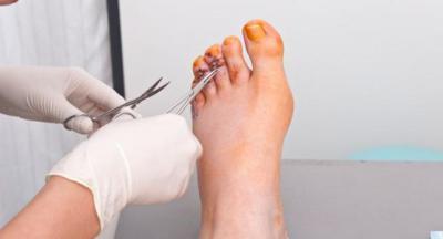 Изображение - Деформация суставов пальцев ног 1873750