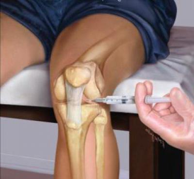 Изображение - Снять боли в суставах лекарство 1887431