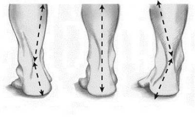 Изображение - Пронация локтевого сустава 1888102