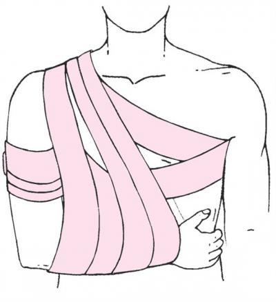 Изображение - Дезо повязка на плечевой сустав при переломе 1944521