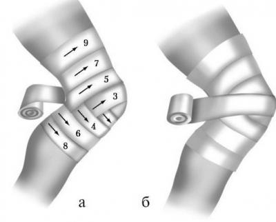 Изображение - Для бинтования локтевого сустава применяют повязку 1951679