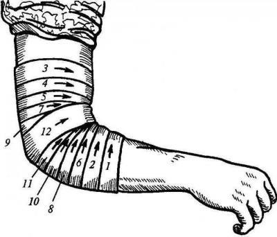 Расходящаяся повязка на локтевой сустав видео лечение после перелома сустава