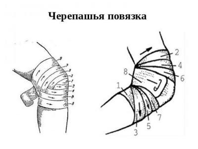 Изображение - Повязка на локтевой коленный сустав 1951691