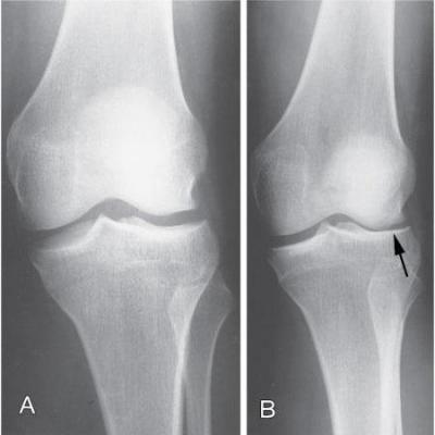 Болезнь колена болезнь шляттера коленного сустава