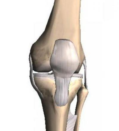 Код мкб доа коленных суставов сильный ушиб тазобедренного сустава