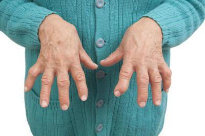 Изображение - Артрит суставов диагностика 2084755