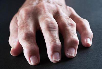 Изображение - Артрит суставов лечение и профилактика 2118907