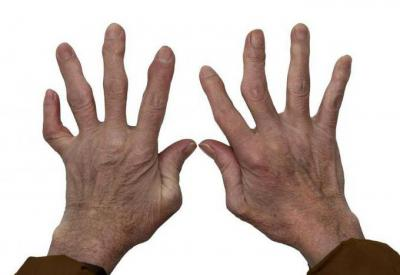 Изображение - Артрит суставов лечение и профилактика 2118910