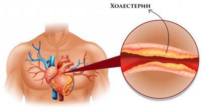 Неотложная помощь при желудочковой экстрасистолии