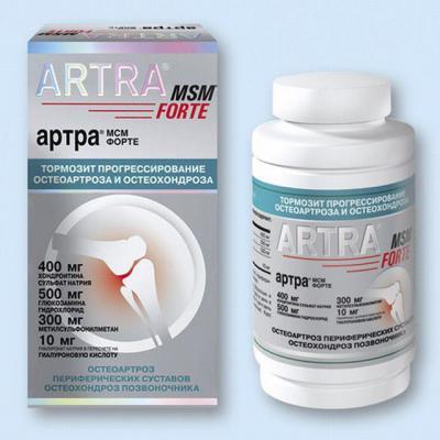 Хондопротекторные препараты для суставов терафлекс кт дентальная сустав