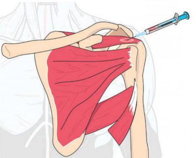 Изображение - Уколы плазмы в плечевой сустав 2198257