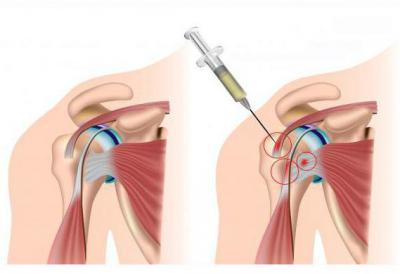 Изображение - Уколы плазмы в плечевой сустав 2198262