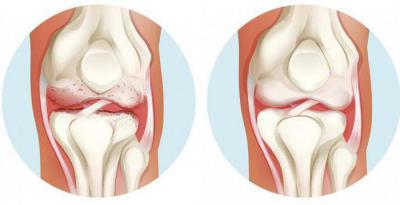 Введение плазмы в сустав отзывы пациентов причины разрушения хрящей в суставах