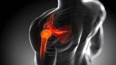 Изображение - Упражнение для плеч сустав в домашних условиях 2205422