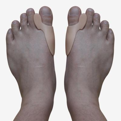 Артрит на ноге возле большого пальца