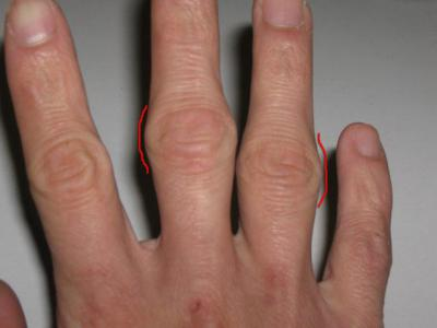 Ушиб сустава пальца руки лечение народными средствами сделать рентген тазо-бедреного сустава у собак