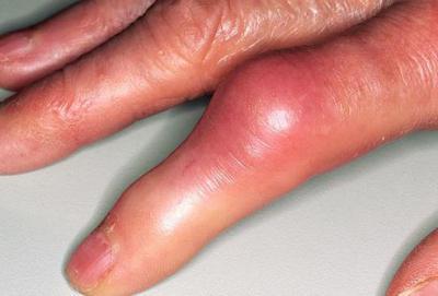 кажется боли в суставах рук лечение народными средствами вот полностью согласен
