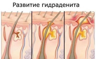 Занятие сексом высыпание на лобке