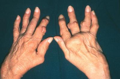 артрит суставов на руках народными средствами Гуардворк предоставление