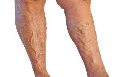 Изображение - Почему горит коленный сустав 2514227